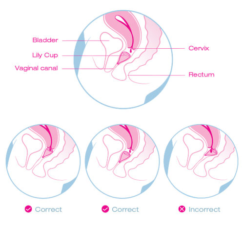 Image result for period cup cervix
