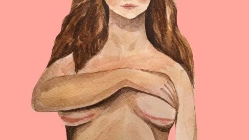breast_implant illness
