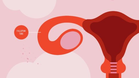 Let's Learn About Fallopian Tubes!