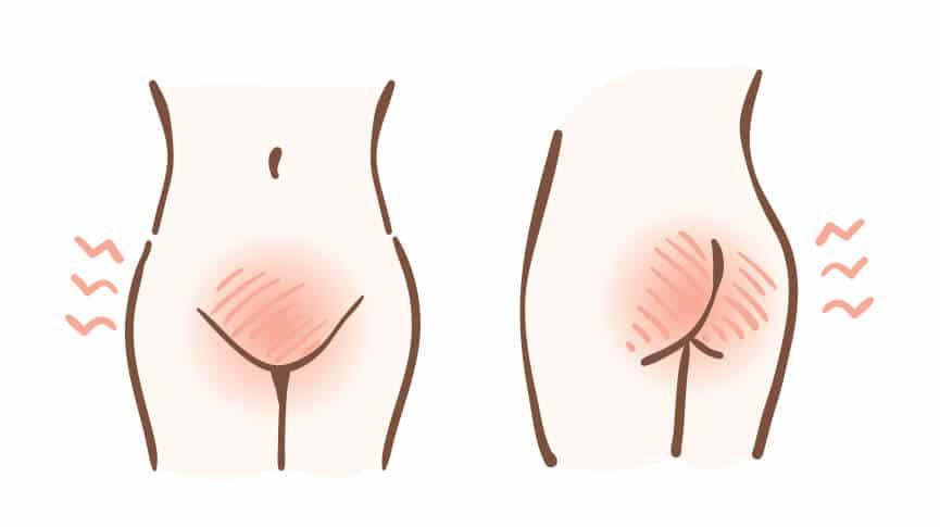 infección vaginal por levaduras secreción blanca