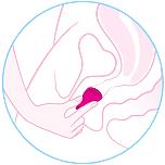 sacar_copa_menstrual_atascada